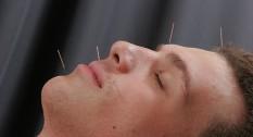Acupuntura dolor cabeza 3