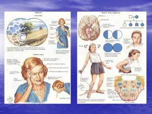 Cefalea Tensional Informacion