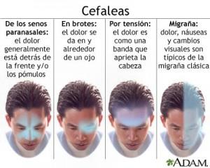 Cefaleas Tipos