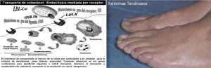 Hipercolesterolemia Familiar4