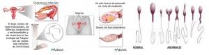 Infertilidad causas1