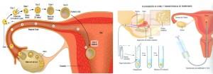 Infertilidad y acupuntura1