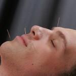 Acupuntura para dolor de cabeza